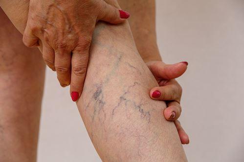 żylaki to problemy obciążania nóg na co jest skuteczny varcioff