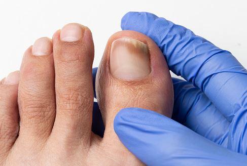 na grzybicę paznokci skuteczny jest krem exodermin