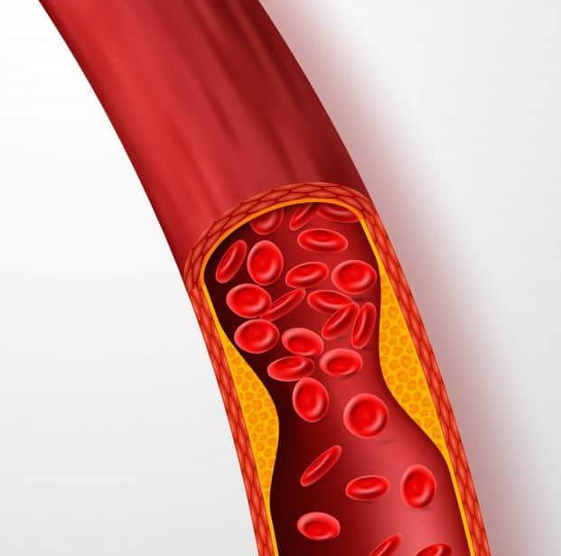 friocard zapobiega problemom z układem krwionośnym zmniejsza ryzyko zawału obniża ciśnienie