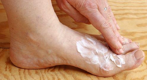 stosuj krem exodermin jako ochronę przed grzybicą stóp