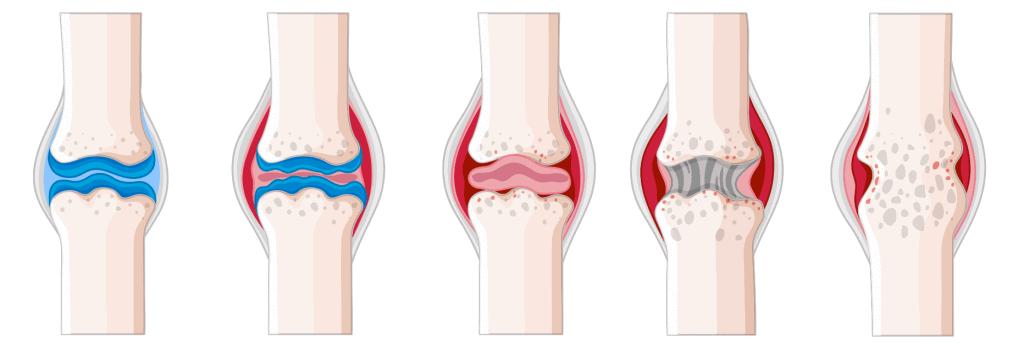 flexio krem regeneruje chrząstki usuwa ból przy zapaleniach stawów